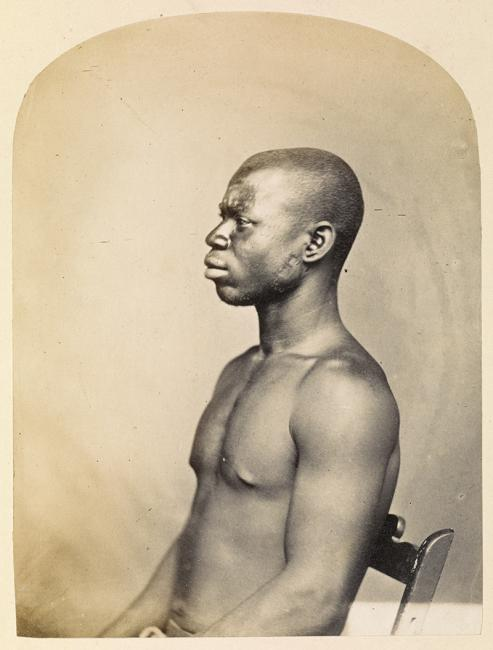 Poses, too, could attempt to show racial morphology as in this photograph of a black slave at Aden, positioned so that his body type and profile are identifiable. Photographer: Unknown, 1860s. Photo 1000/42/4411a